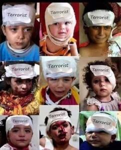 Siria bambini feriti considerati terroristi ai russi. Foto tratta da Genocyde in Siria
