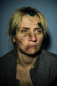 Larisa, a 30-year old citizen of Mykolayivka, a town near Sloviansk, Donetsk region, Ukraine, sits in the hospital after her home was destroyed by mortar shelling, July 5, 2014. Ukrainian army recaptured Sloviansk and nearby towns from pro-Russian rebels on July 5, 2014, after more then two months of artillery fire from both sides.