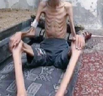 Rgazzo denutrito in Siria_3b